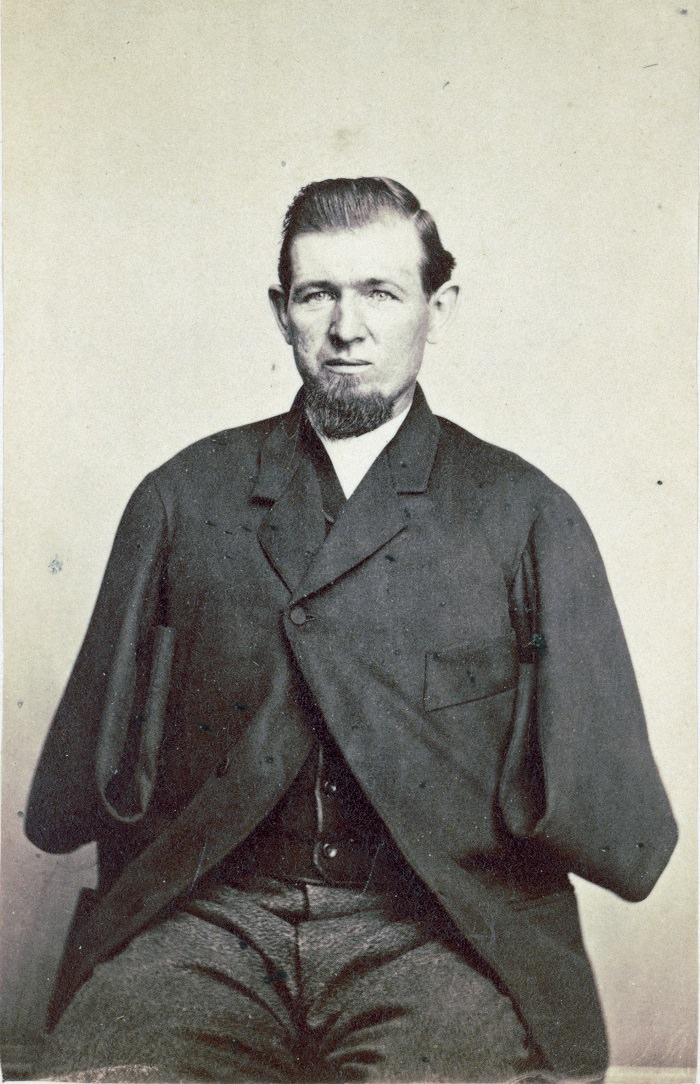 Private George W. Warner, wounded at Gettysburg on July 3, 1863, photographed in 1868