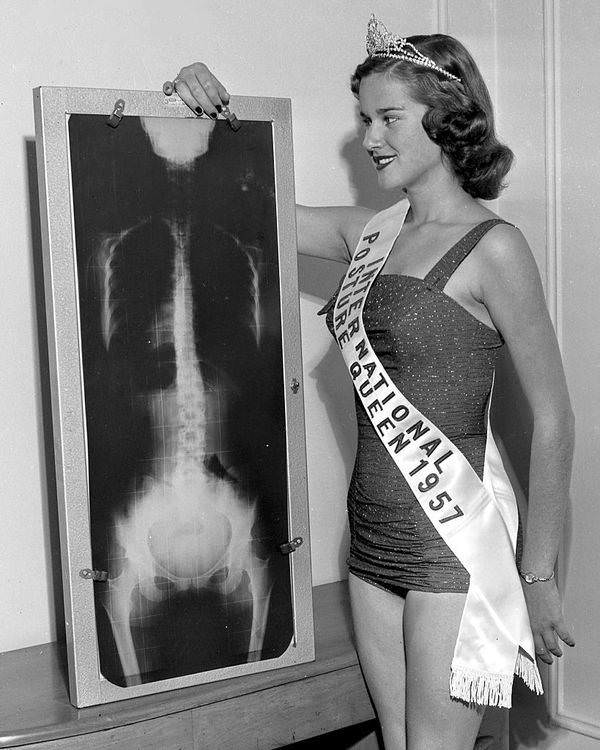 National Posture Queen Diane Stopky of St. Louis, poses next to an X-ray of her spine, New York, 1957.