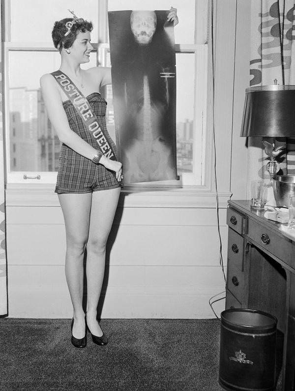 Patti Sharon Jones, a 17-year-old high school senior chosen as Miss Posture Queen by the Michigan Academy of Chiropractors, Inc.