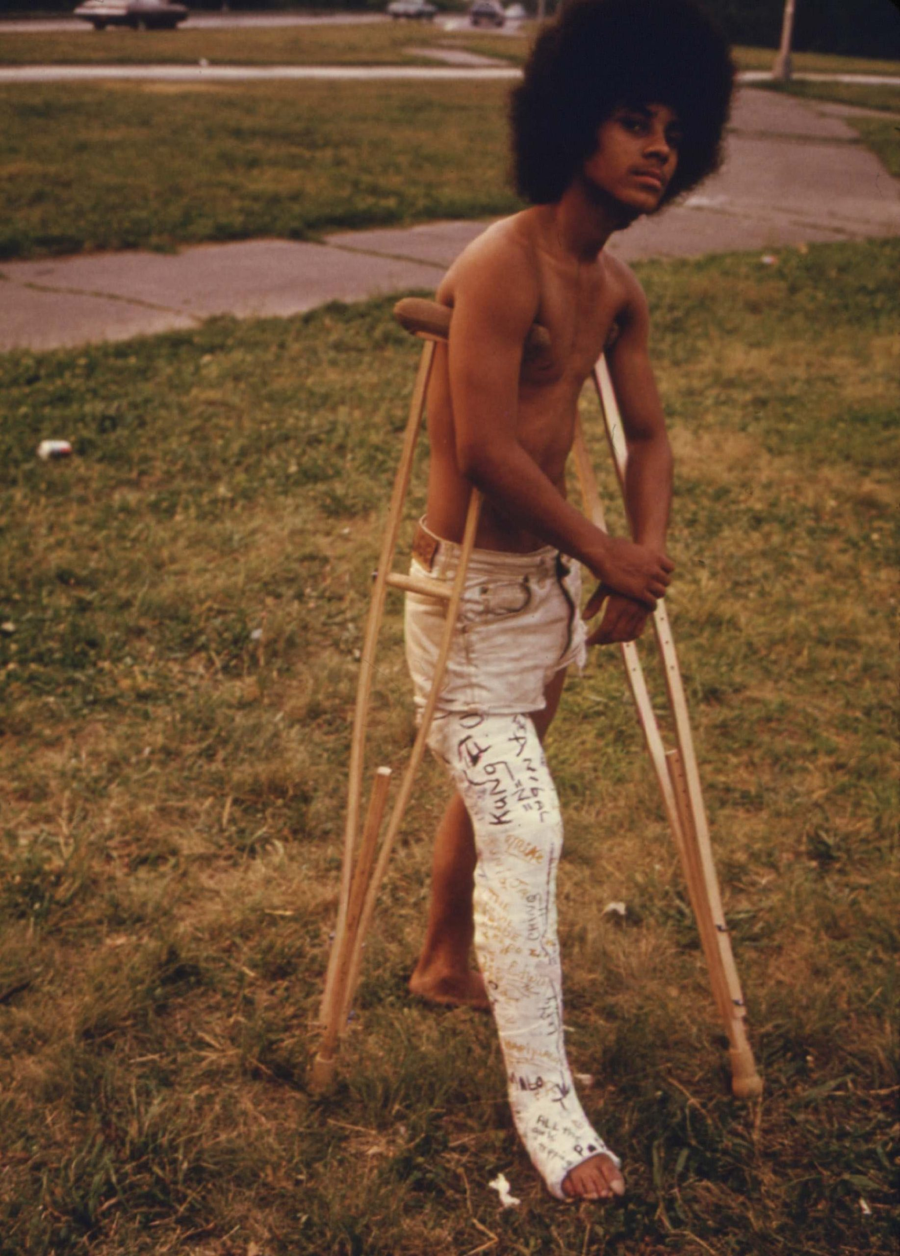 Young Man with His Leg in a Cast in Hiland Park of Brooklyn, July 1974.