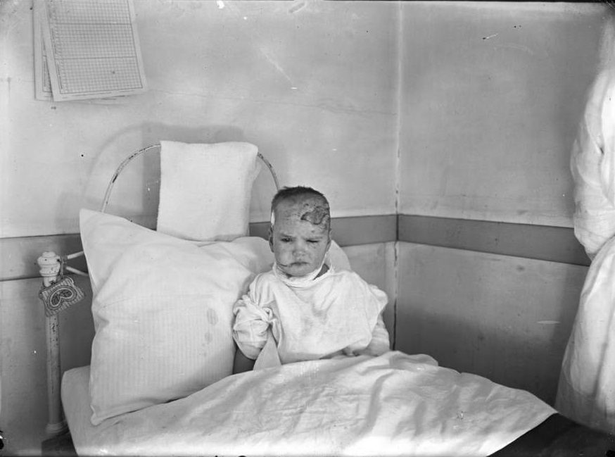 A child, injured in the explosion, recuperates in a hospital bed.