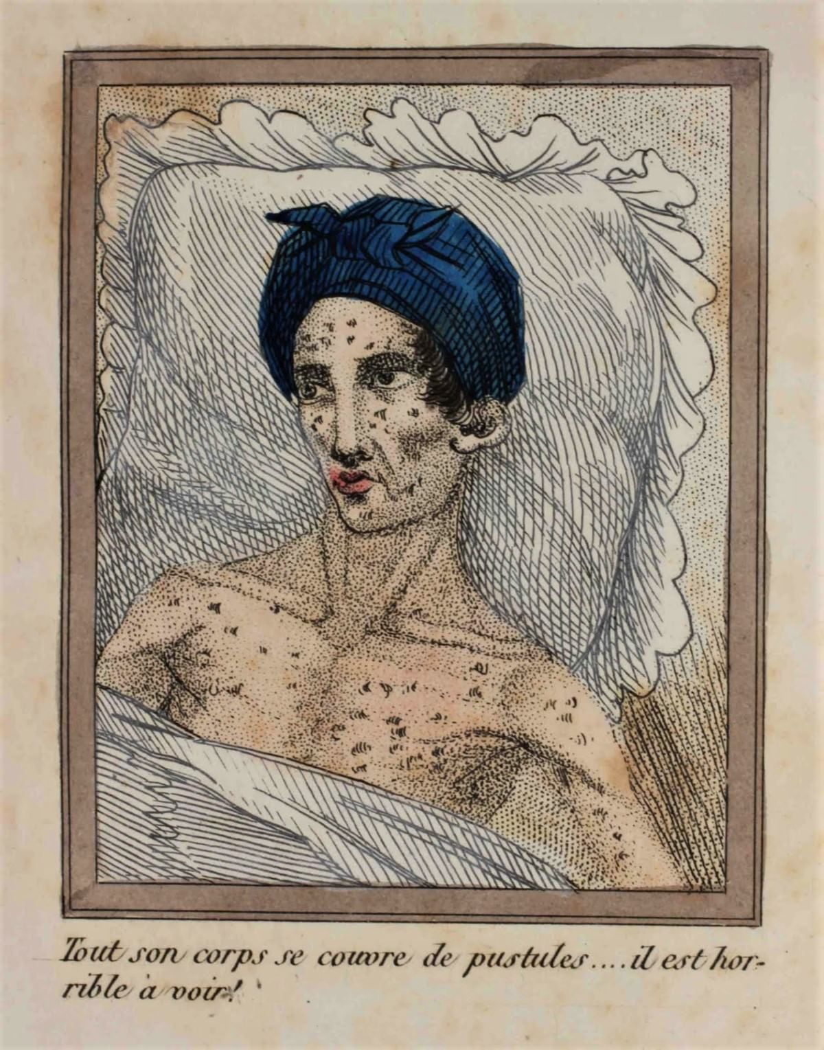 His body once young and lithe is now covered with suppurating sores that burst and leak! He is a horrible sight!